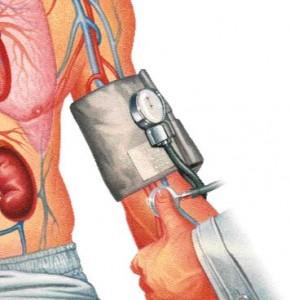 hipotensión o presión arterial baja